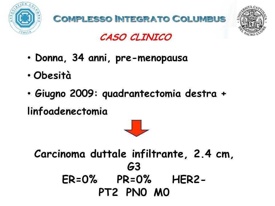 Carcinoma duttale infiltrante, 2.4 cm, G3