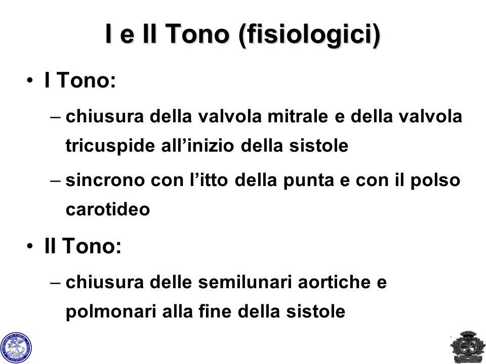 I e II Tono (fisiologici)