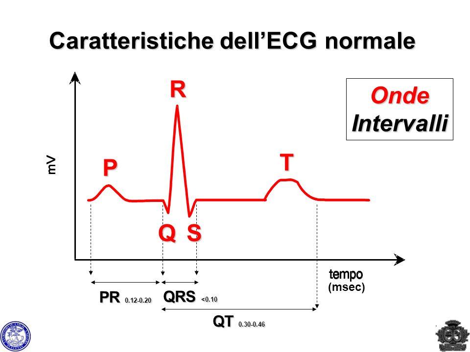 Caratteristiche dell'ECG normale