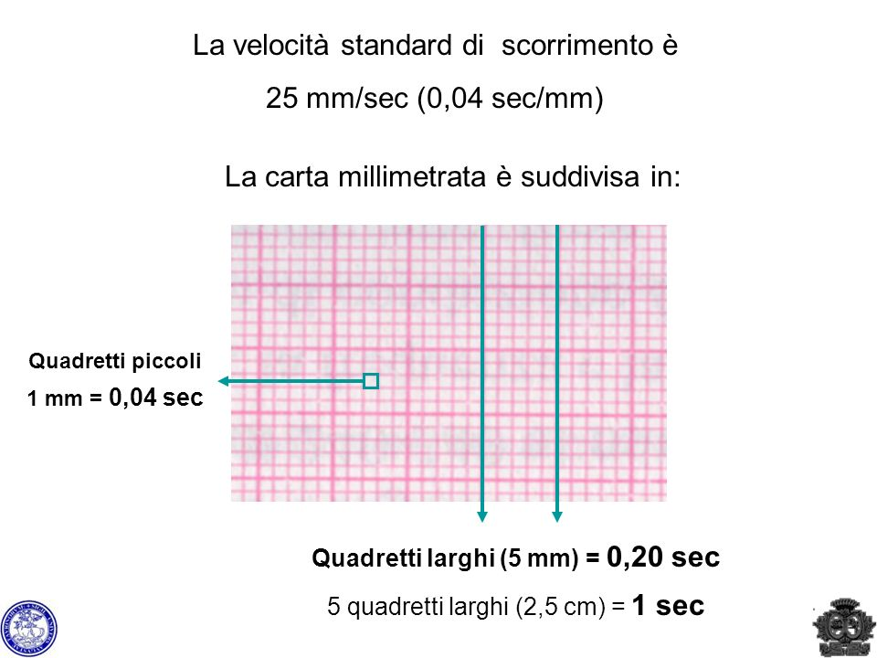 La velocità standard di scorrimento è 25 mm/sec (0,04 sec/mm)