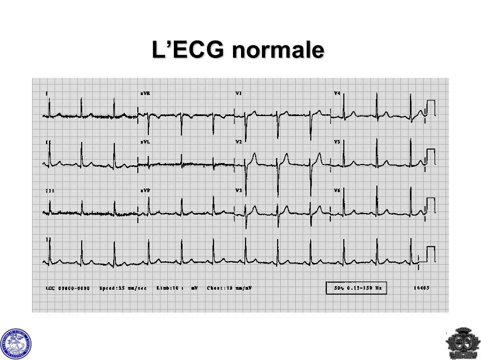 L'ECG normale