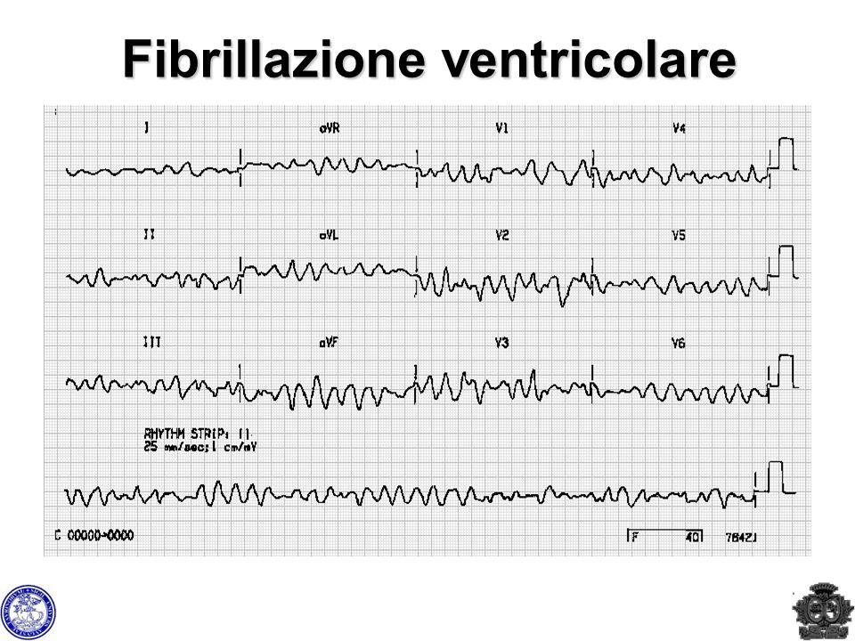 Fibrillazione ventricolare