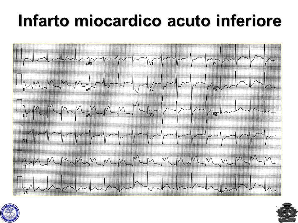 Infarto miocardico acuto inferiore