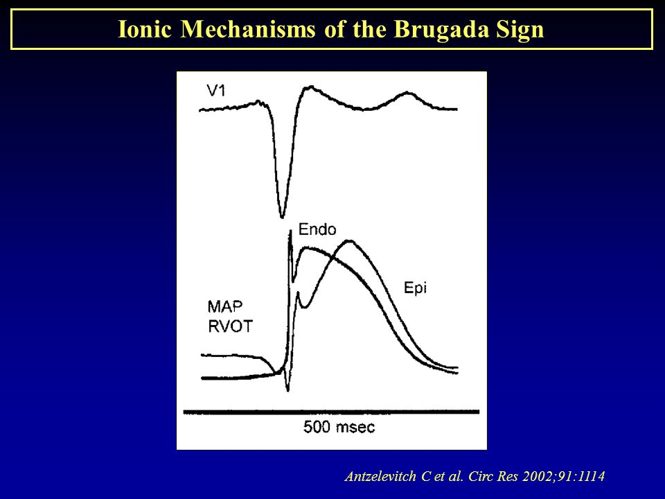 Ionic Mechanisms of the Brugada Sign