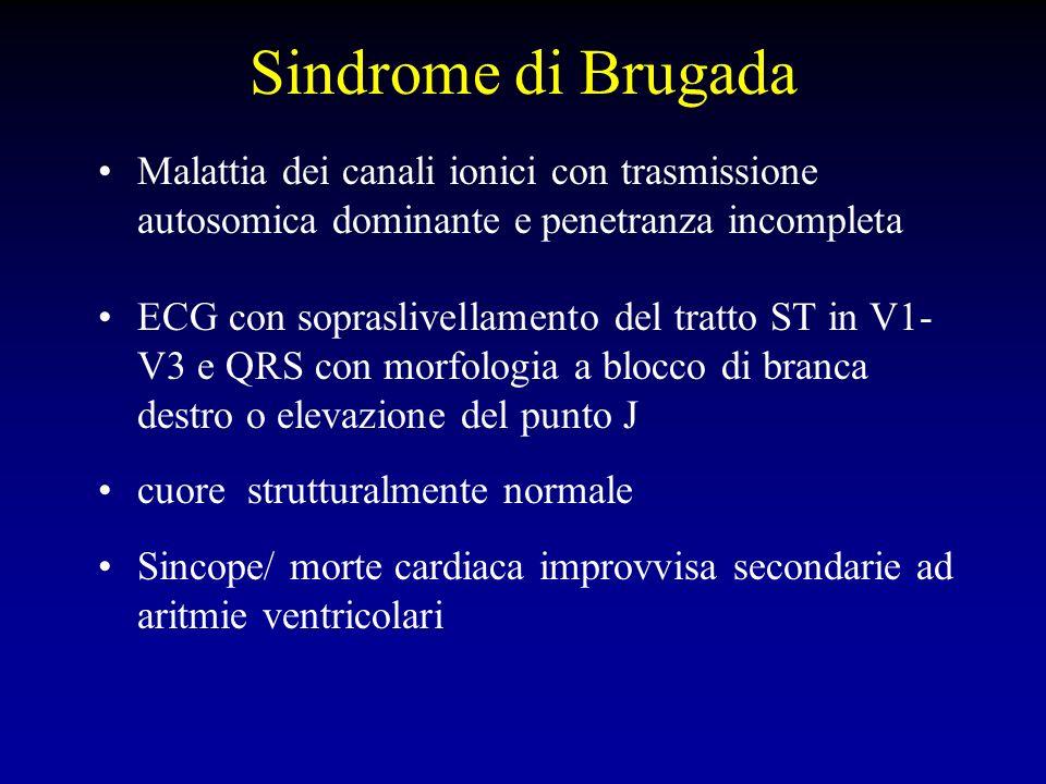 Sindrome di Brugada Malattia dei canali ionici con trasmissione autosomica dominante e penetranza incompleta.