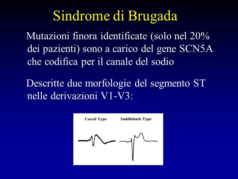 Sindrome di Brugada Mutazioni finora identificate (solo nel 20% dei pazienti) sono a carico del gene SCN5A che codifica per il canale del sodio.