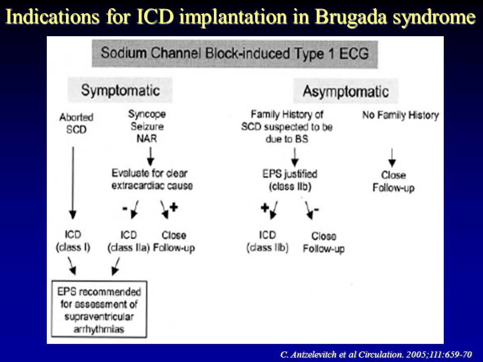Indications for ICD implantation in Brugada syndrome