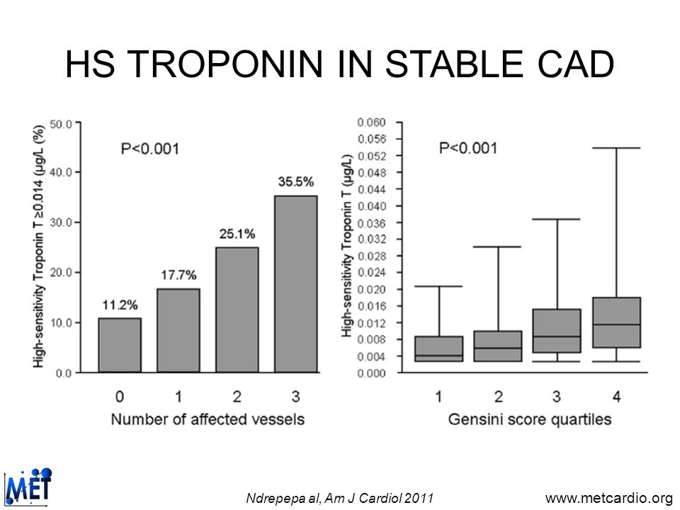 HS TROPONIN IN STABLE CAD