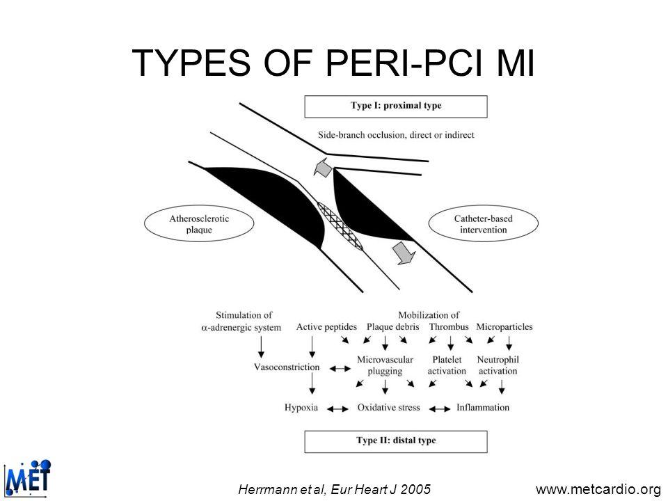 Herrmann et al, Eur Heart J 2005