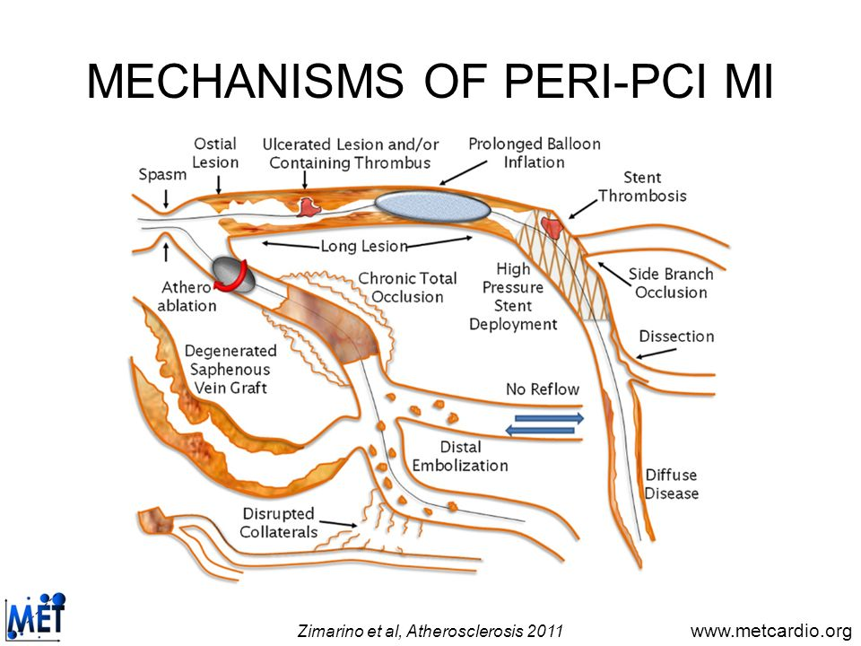MECHANISMS OF PERI-PCI MI