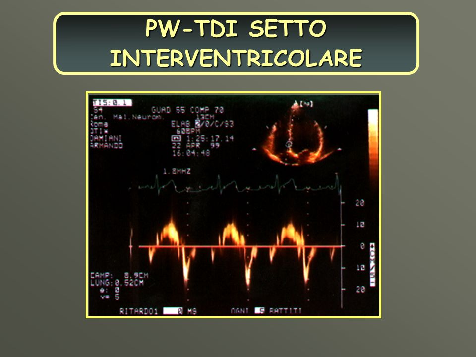 PW-TDI SETTO INTERVENTRICOLARE
