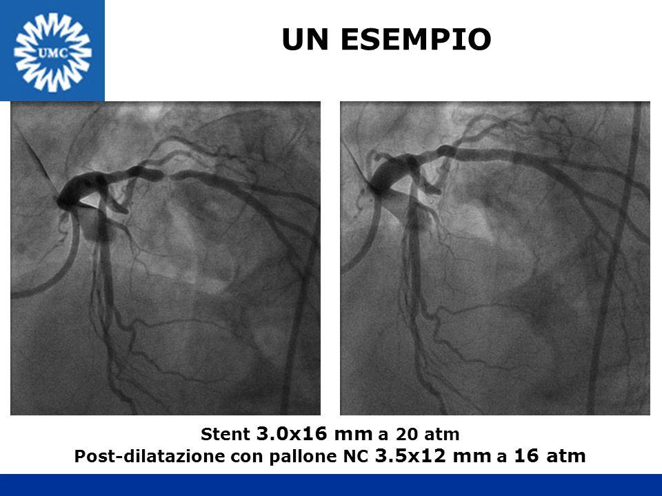 Post-dilatazione con pallone NC 3.5x12 mm a 16 atm