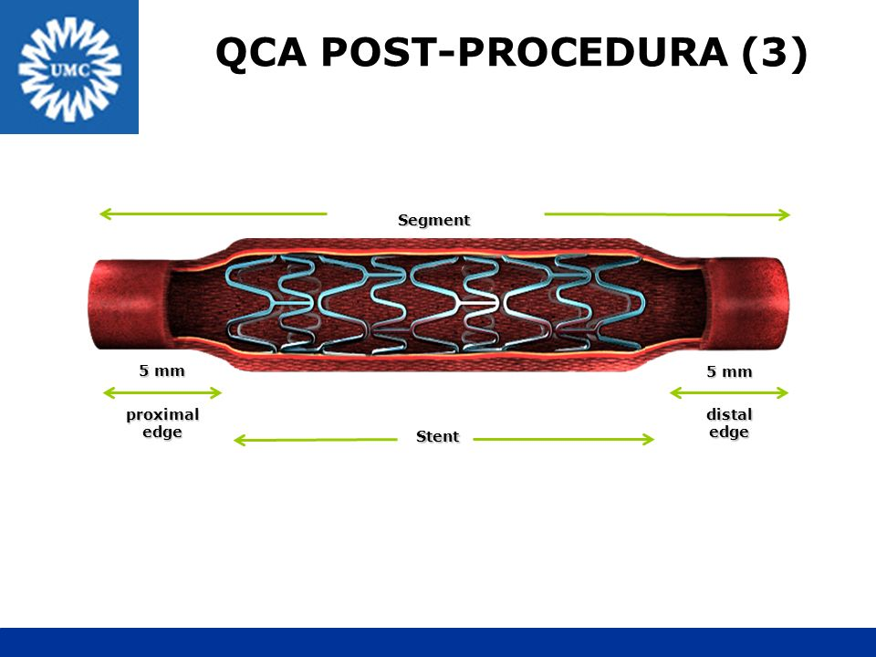 QCA POST-PROCEDURA (3) Segment 5 mm 5 mm proximal edge distal edge