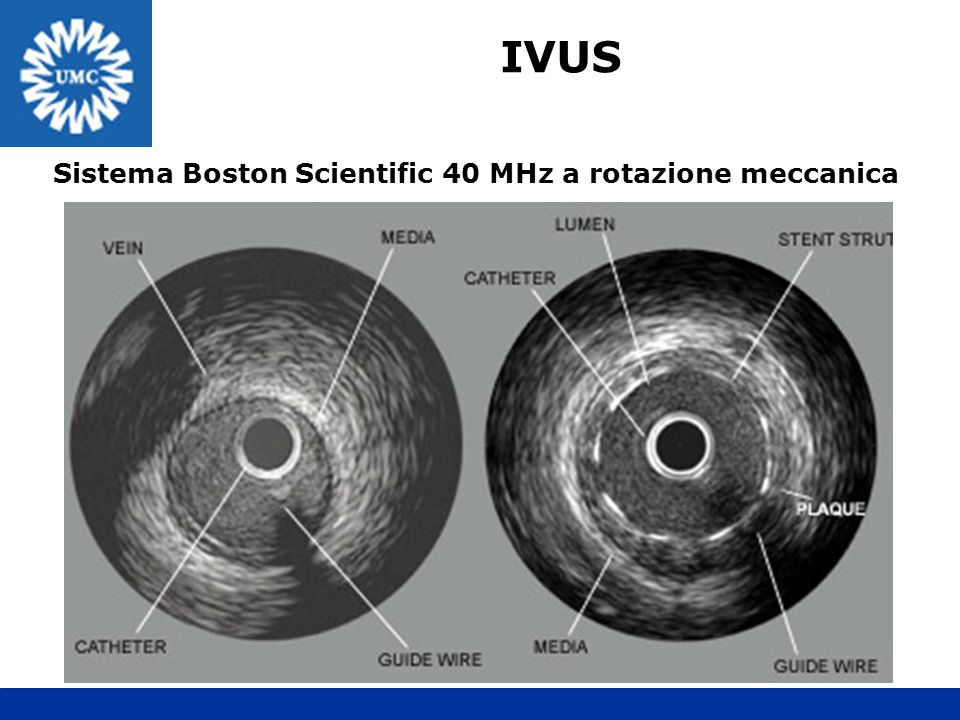 Sistema Boston Scientific 40 MHz a rotazione meccanica