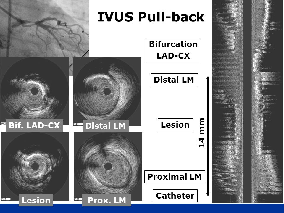 IVUS Pull-back Bifurcation LAD-CX Distal LM Bif. LAD-CX Lesion