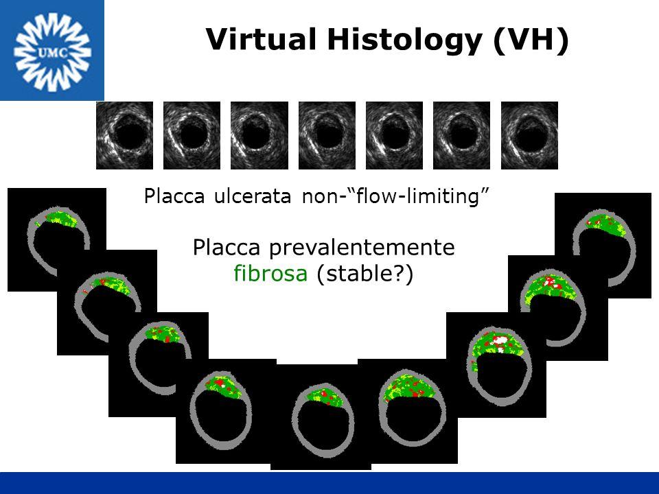 Virtual Histology (VH)