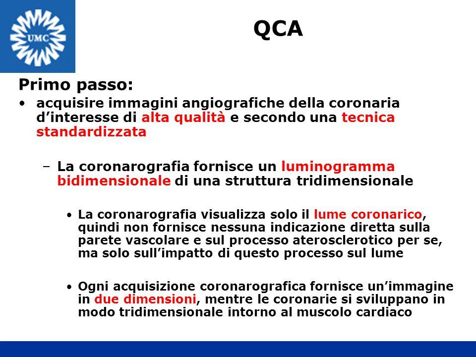 QCA Primo passo: acquisire immagini angiografiche della coronaria d'interesse di alta qualità e secondo una tecnica standardizzata.