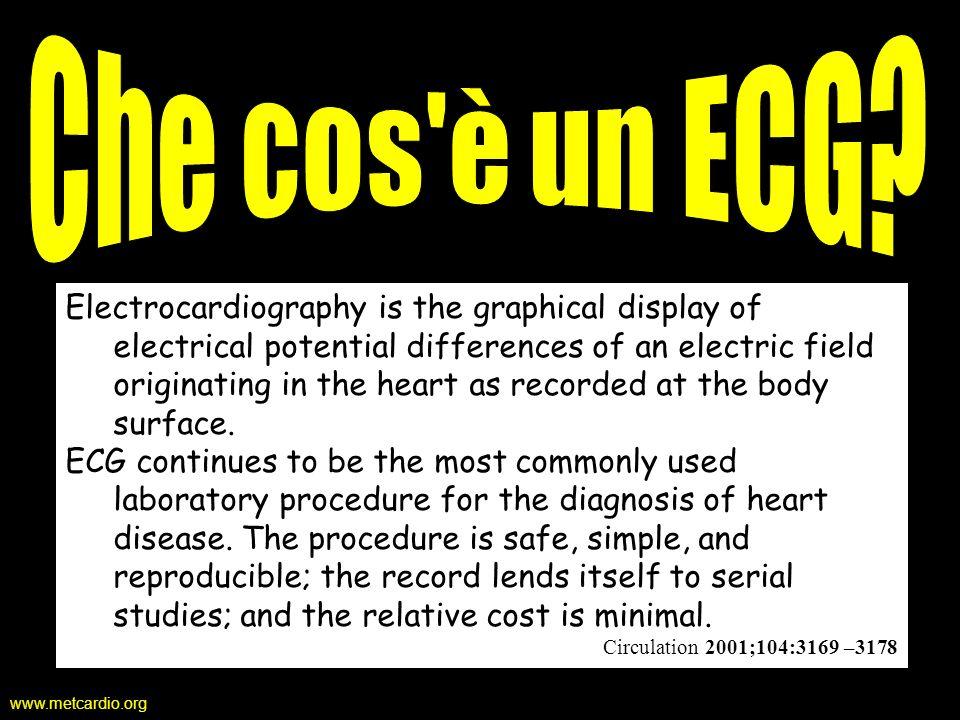 Che cos è un ECG