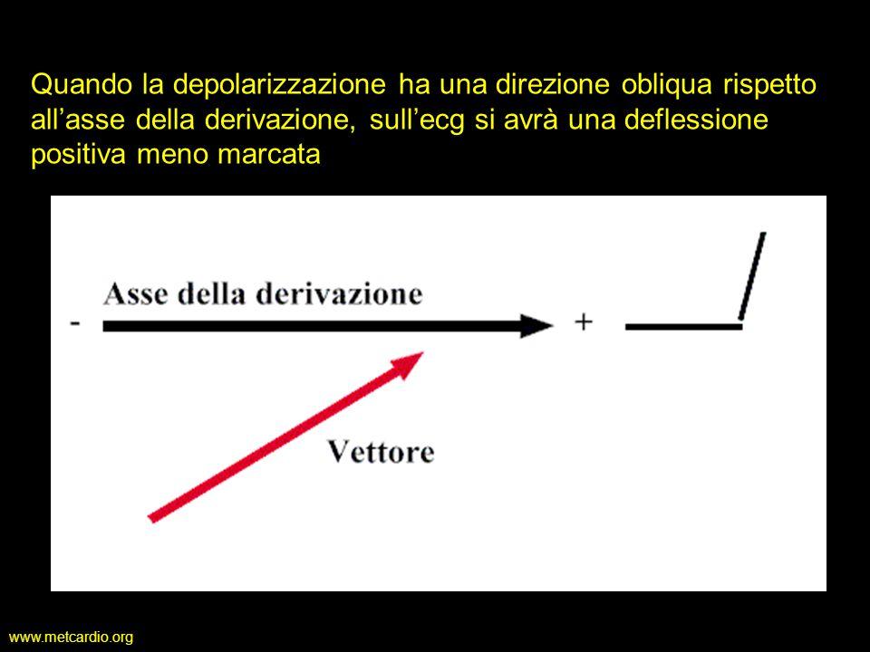 Quando la depolarizzazione ha una direzione obliqua rispetto all'asse della derivazione, sull'ecg si avrà una deflessione positiva meno marcata