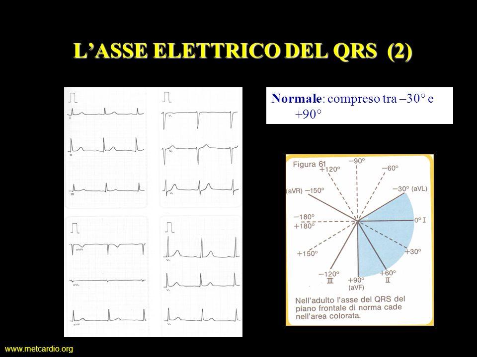 L'ASSE ELETTRICO DEL QRS (2)