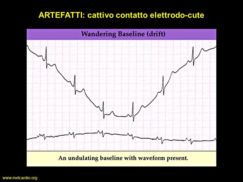 ARTEFATTI: cattivo contatto elettrodo-cute