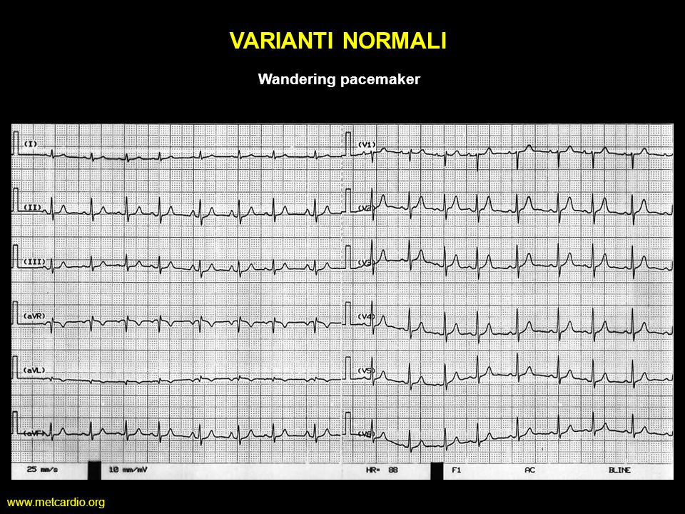 VARIANTI NORMALI Wandering pacemaker