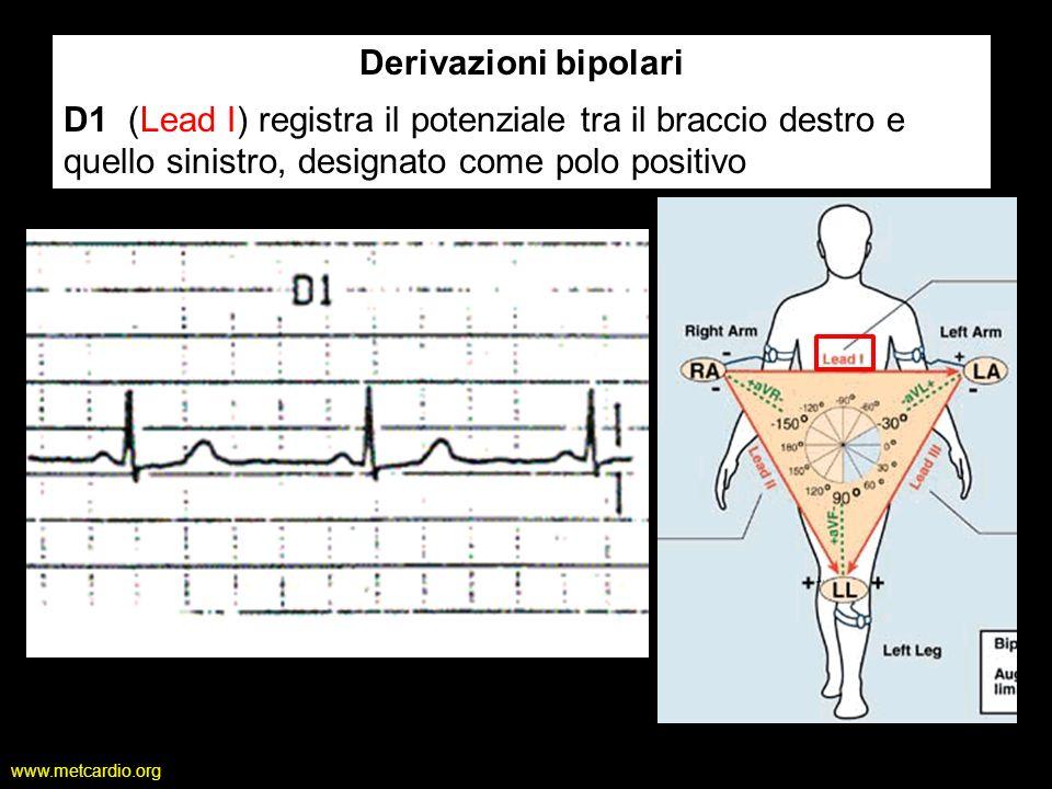 Derivazioni bipolari D1 (Lead I) registra il potenziale tra il braccio destro e quello sinistro, designato come polo positivo.