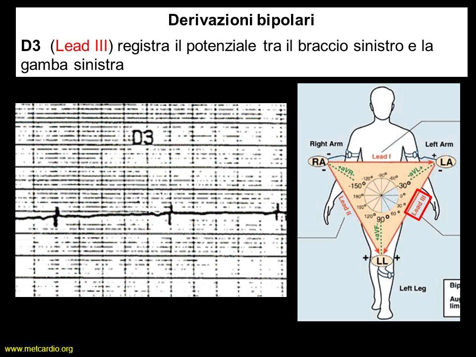 Derivazioni bipolari D3 (Lead III) registra il potenziale tra il braccio sinistro e la gamba sinistra.