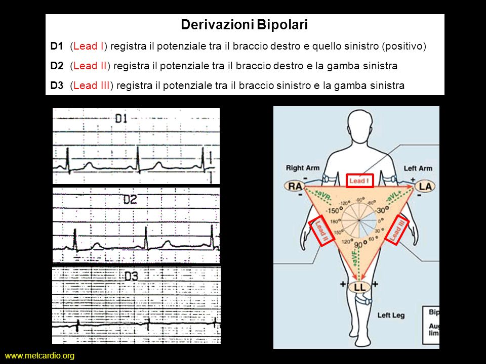Derivazioni Bipolari D1 (Lead I) registra il potenziale tra il braccio destro e quello sinistro (positivo)