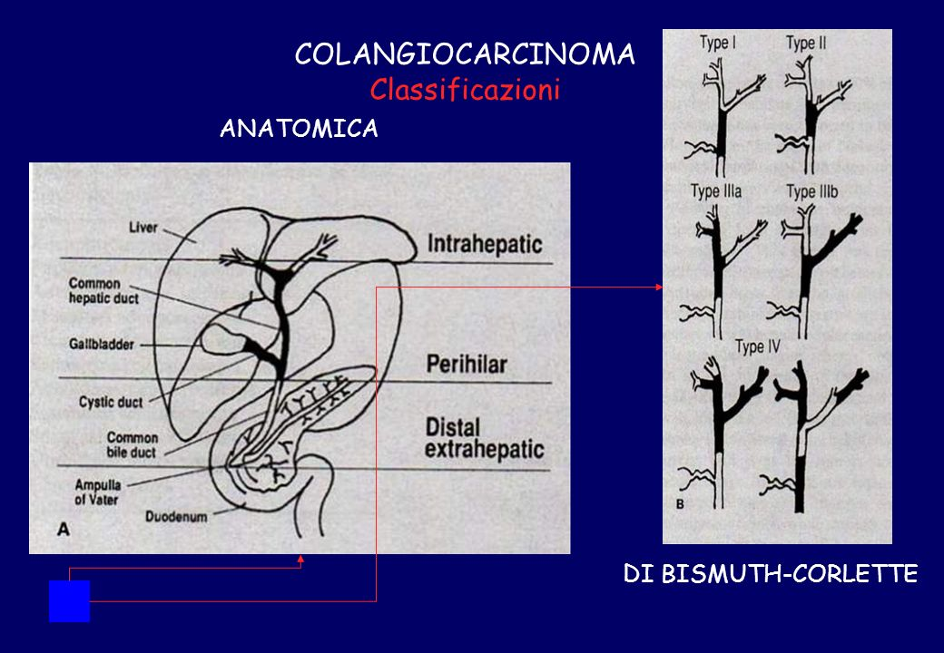 COLANGIOCARCINOMA Classificazioni DI BISMUTH-CORLETTE ANATOMICA