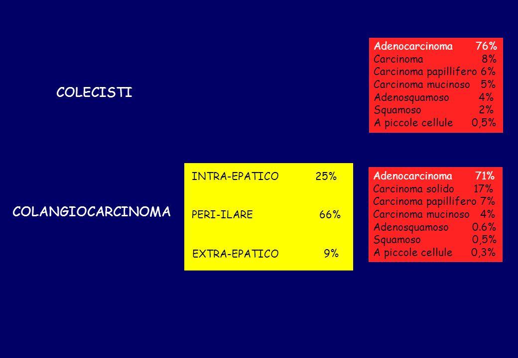 COLECISTI COLANGIOCARCINOMA Adenocarcinoma 76% Carcinoma 8%