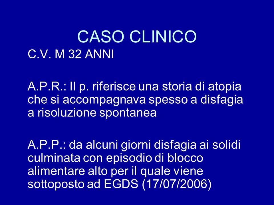 CASO CLINICO C.V. M 32 ANNI. A.P.R.: Il p. riferisce una storia di atopia che si accompagnava spesso a disfagia a risoluzione spontanea.
