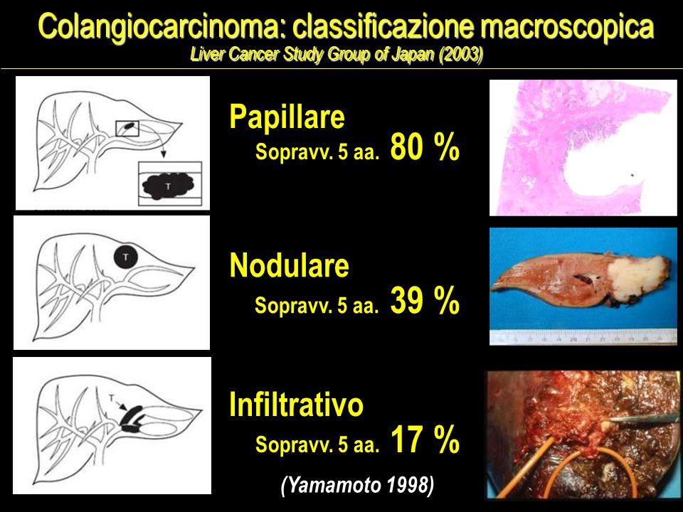 Colangiocarcinoma: classificazione macroscopica