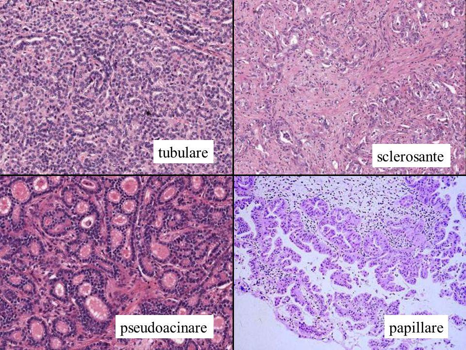 tubulare sclerosante pseudoacinare papillare