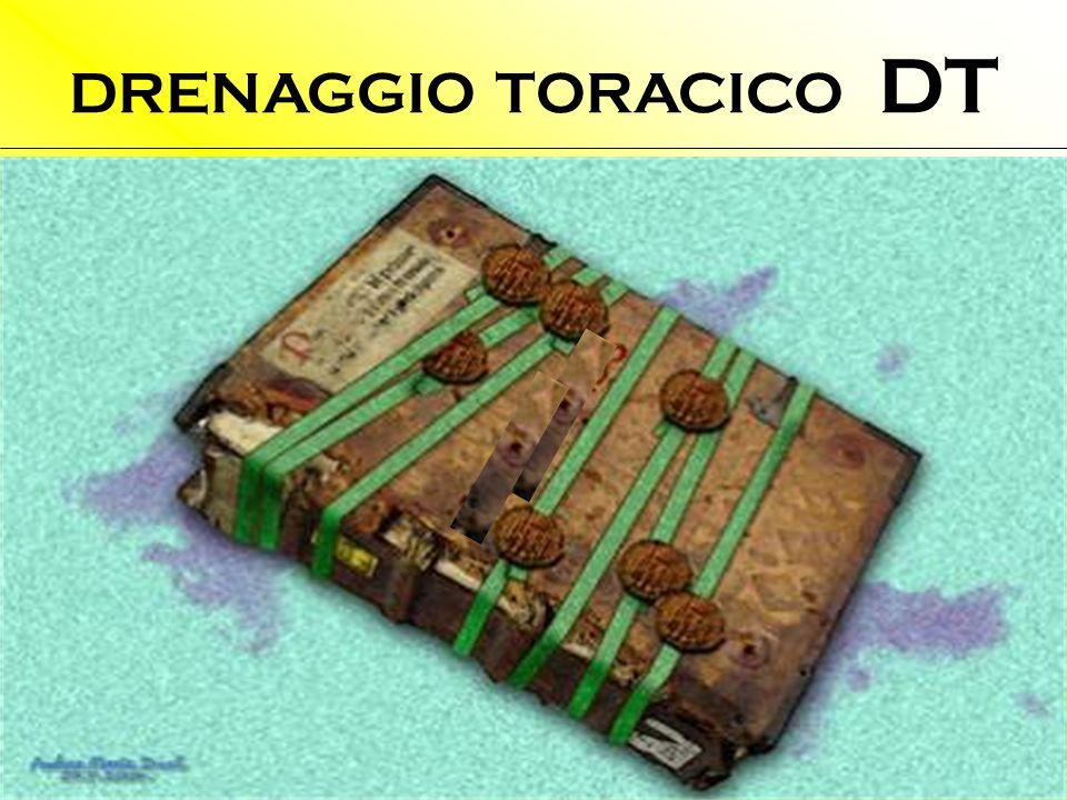 DRENAGGIO TORACICO DT Quando posizionare il DT