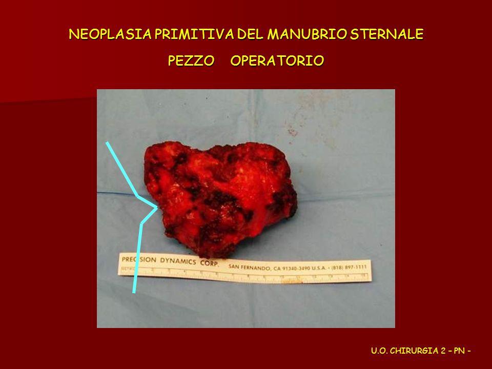 NEOPLASIA PRIMITIVA DEL MANUBRIO STERNALE PEZZO OPERATORIO