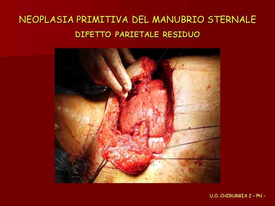 NEOPLASIA PRIMITIVA DEL MANUBRIO STERNALE DIFETTO PARIETALE RESIDUO