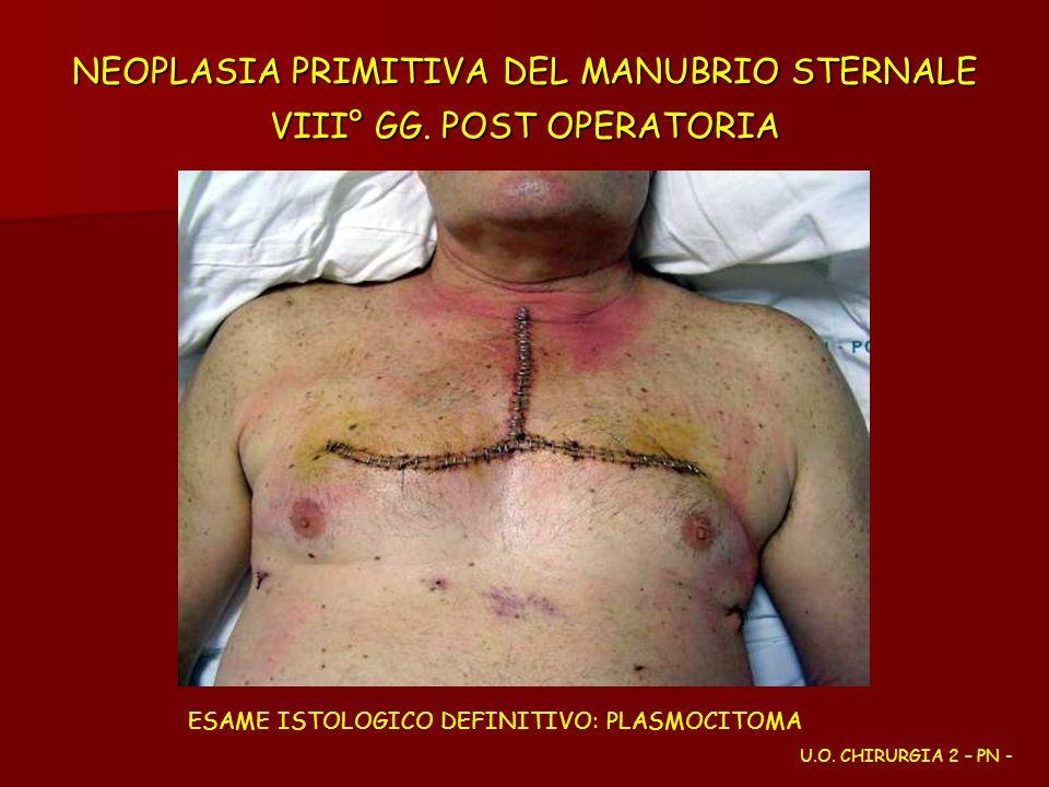 NEOPLASIA PRIMITIVA DEL MANUBRIO STERNALE VIII° GG. POST OPERATORIA