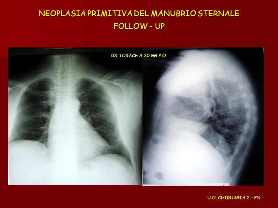 NEOPLASIA PRIMITIVA DEL MANUBRIO STERNALE FOLLOW - UP