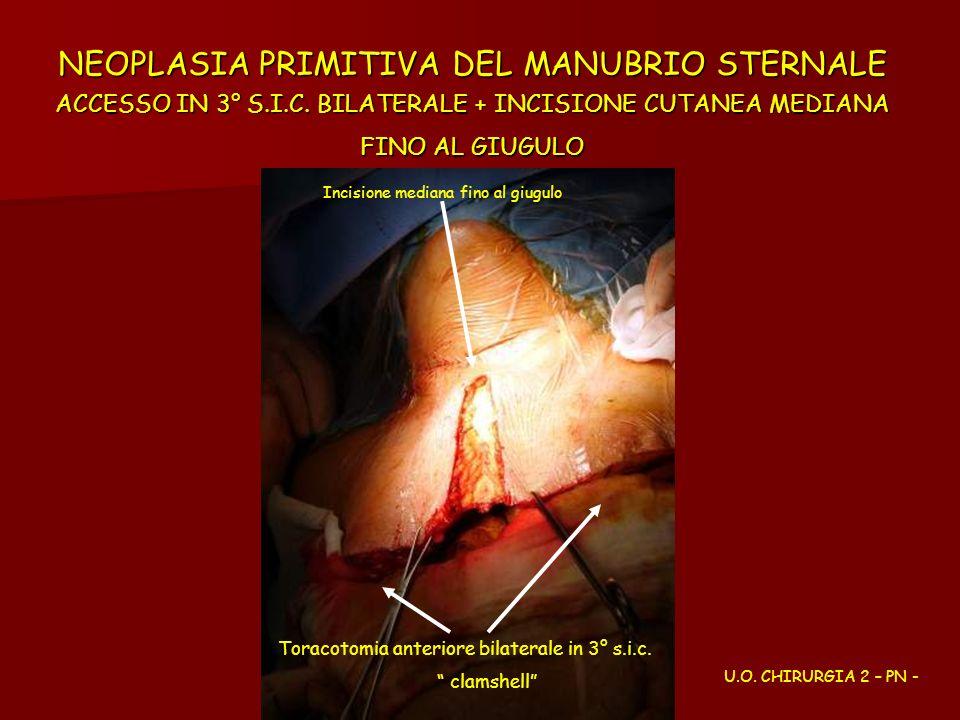 NEOPLASIA PRIMITIVA DEL MANUBRIO STERNALE ACCESSO IN 3° S. I. C