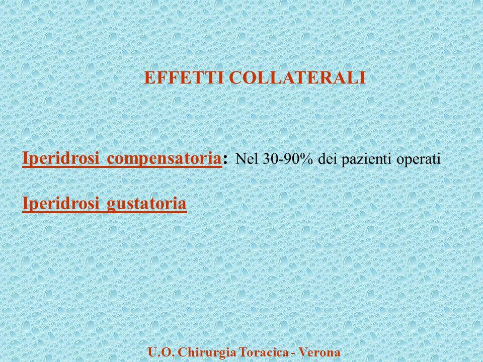 Iperidrosi compensatoria: Nel 30-90% dei pazienti operati