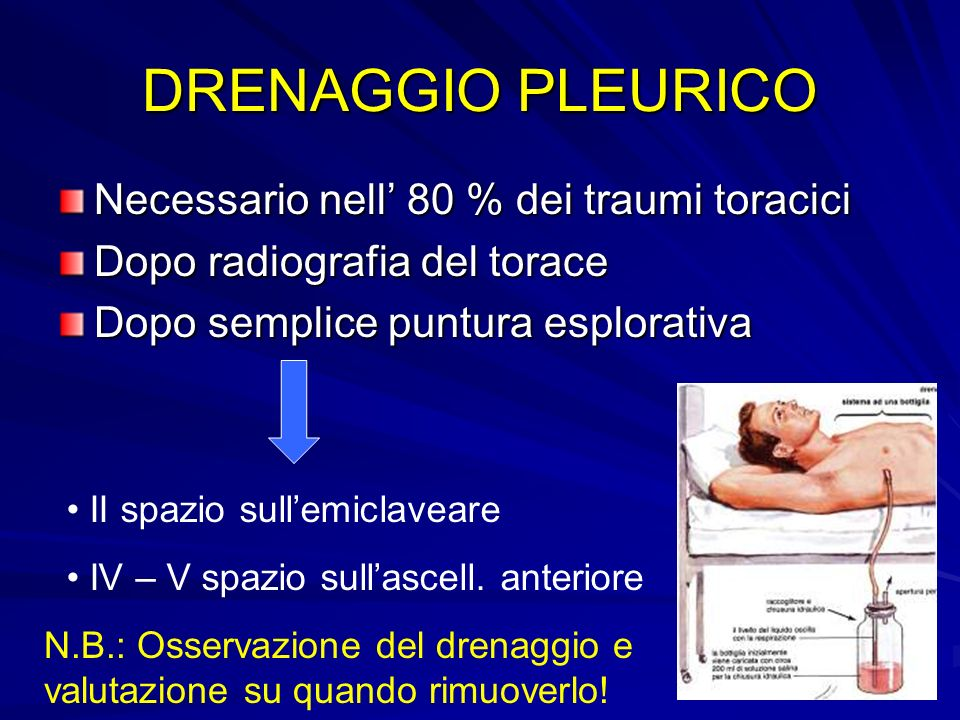 DRENAGGIO PLEURICO Necessario nell' 80 % dei traumi toracici