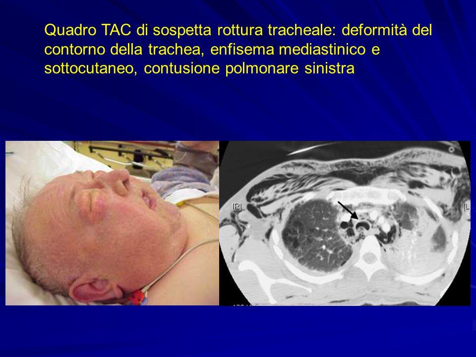 Quadro TAC di sospetta rottura tracheale: deformità del contorno della trachea, enfisema mediastinico e sottocutaneo, contusione polmonare sinistra