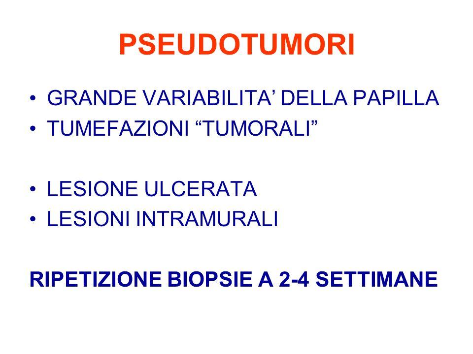 PSEUDOTUMORI GRANDE VARIABILITA' DELLA PAPILLA TUMEFAZIONI TUMORALI