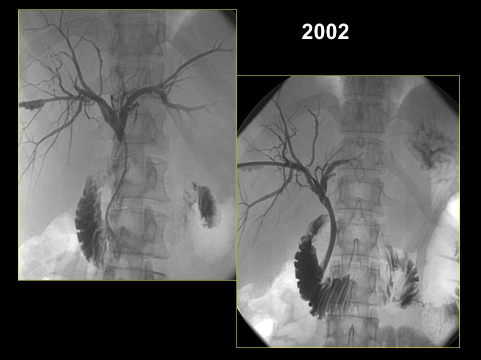 2002 Zenatti Rosalba: posizionamento endoprotesi per via percutanea.