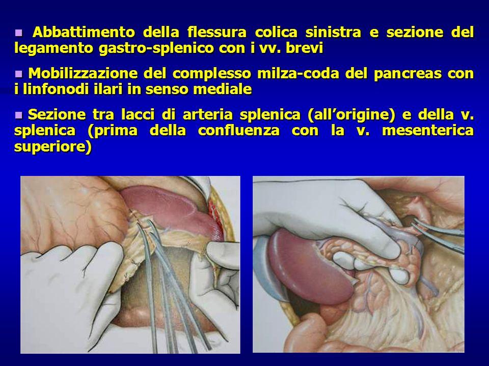 Abbattimento della flessura colica sinistra e sezione del legamento gastro-splenico con i vv. brevi
