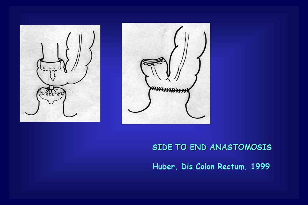 SIDE TO END ANASTOMOSIS