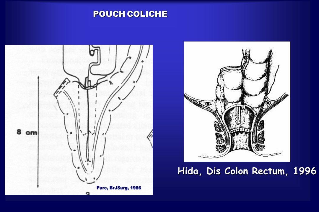 POUCH COLICHE Hida, Dis Colon Rectum, 1996