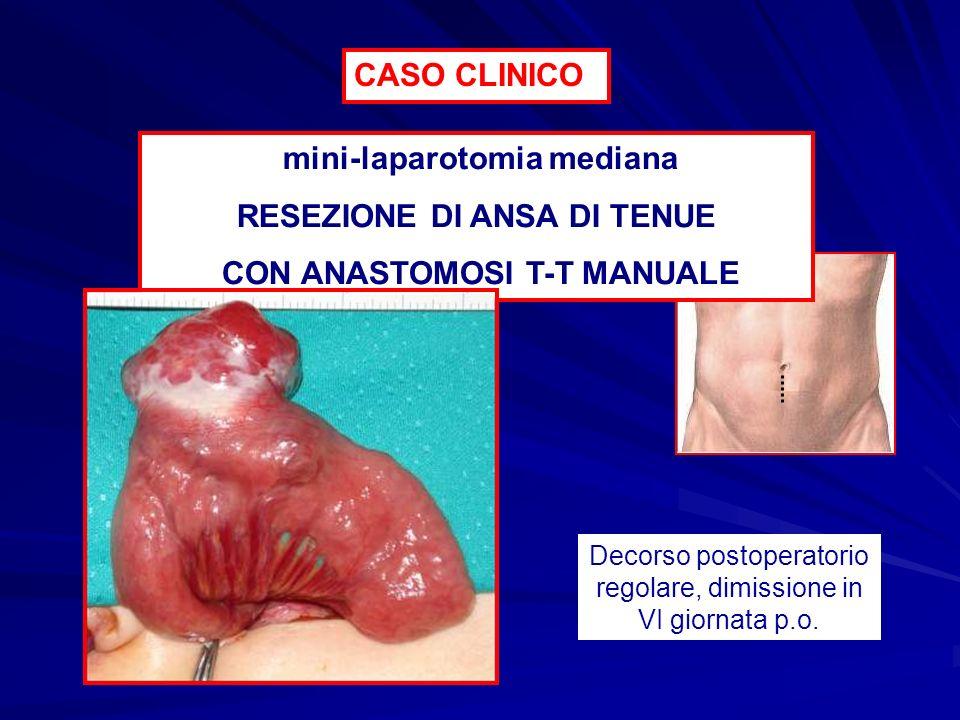 mini-laparotomia mediana RESEZIONE DI ANSA DI TENUE