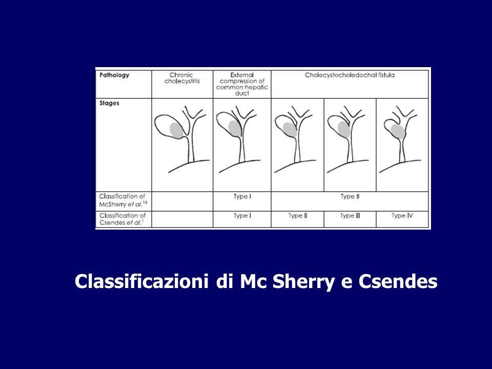 Classificazioni di Mc Sherry e Csendes
